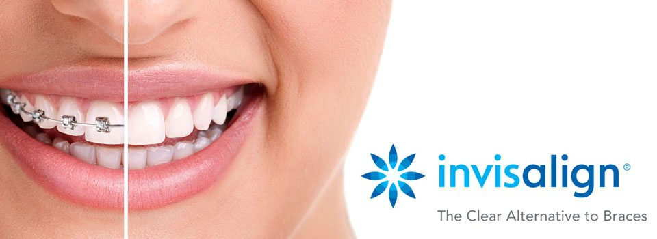 Invisalign is your opportunity for a perfect smile