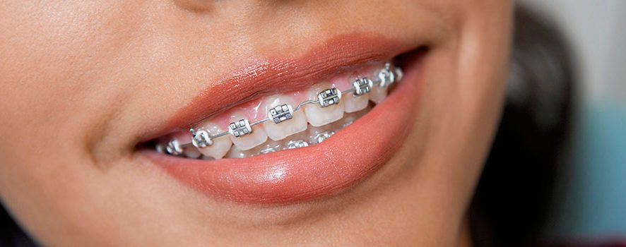 Winnipeg Orthodontists