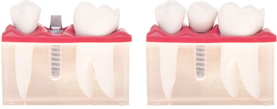 Dental Implant in Winnipeg