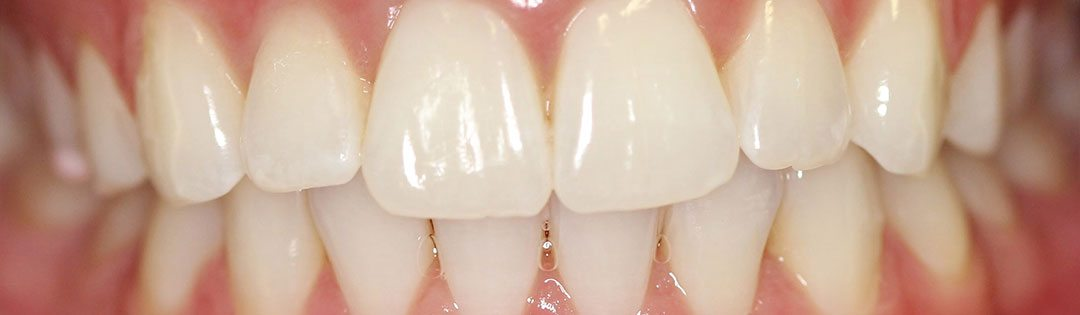 Crowded Teeth Corrected
