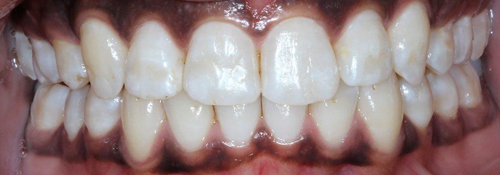 Flared Teeth Corrected