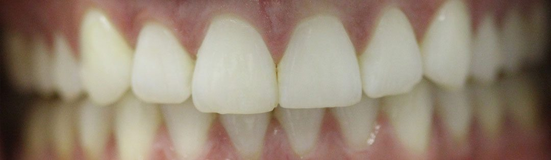 Invisalign corrects this patients smile