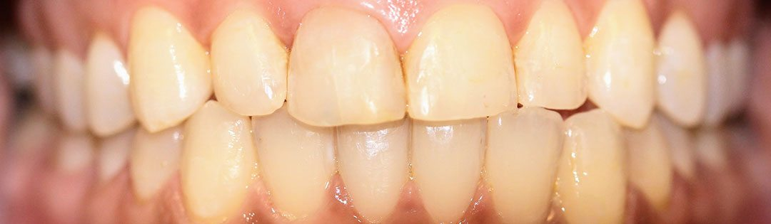 Bonding and Composite Fillings