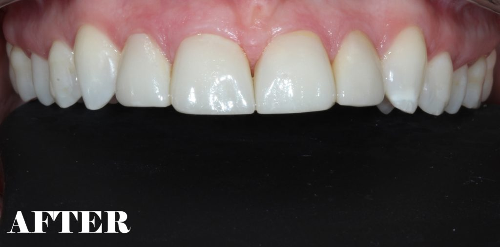 Overbite After Teeth
