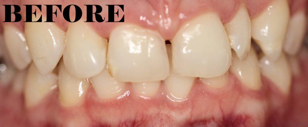 Overbite Before Teeth