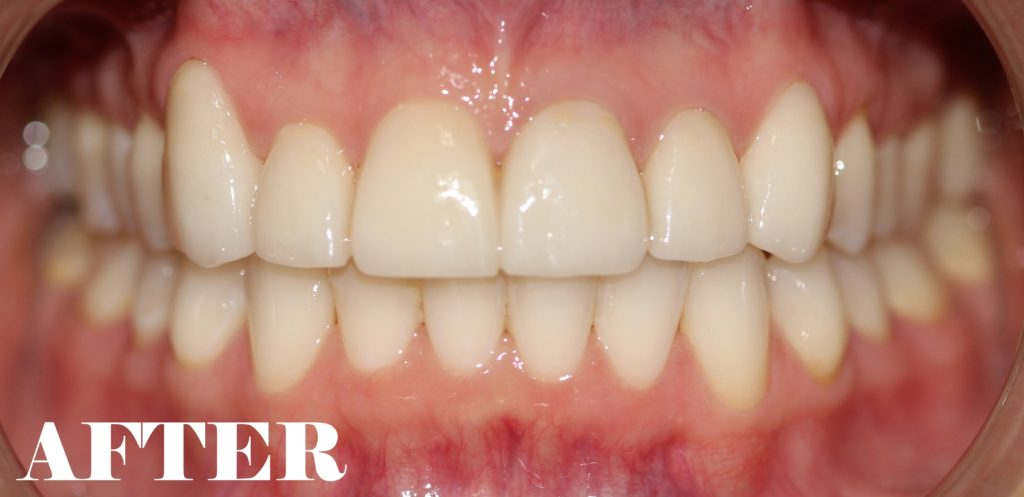 broken teeth after
