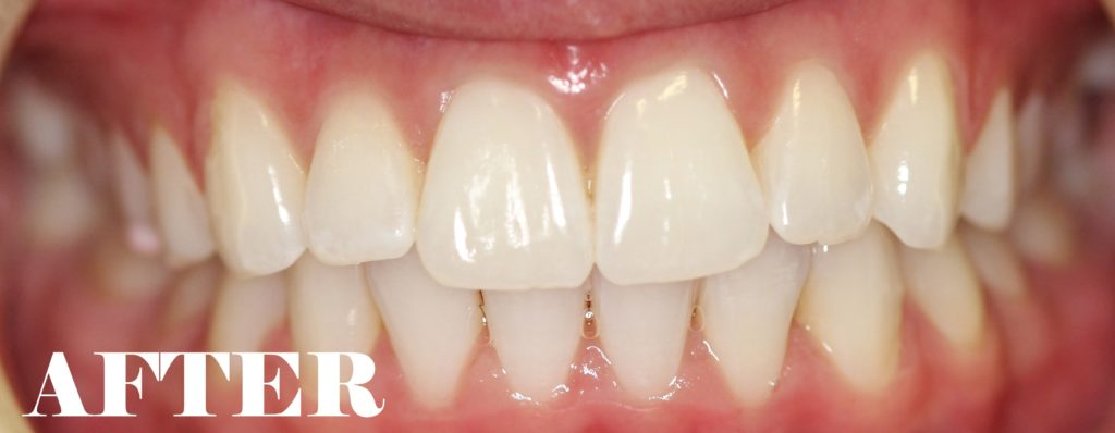 crowded teeth after