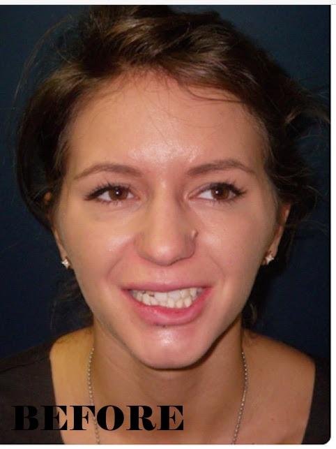 broken teeth before