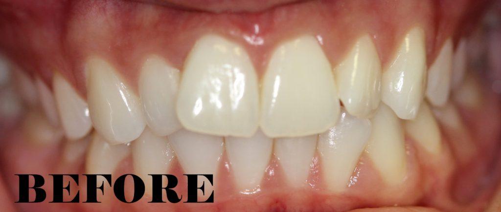 crowded teeth before