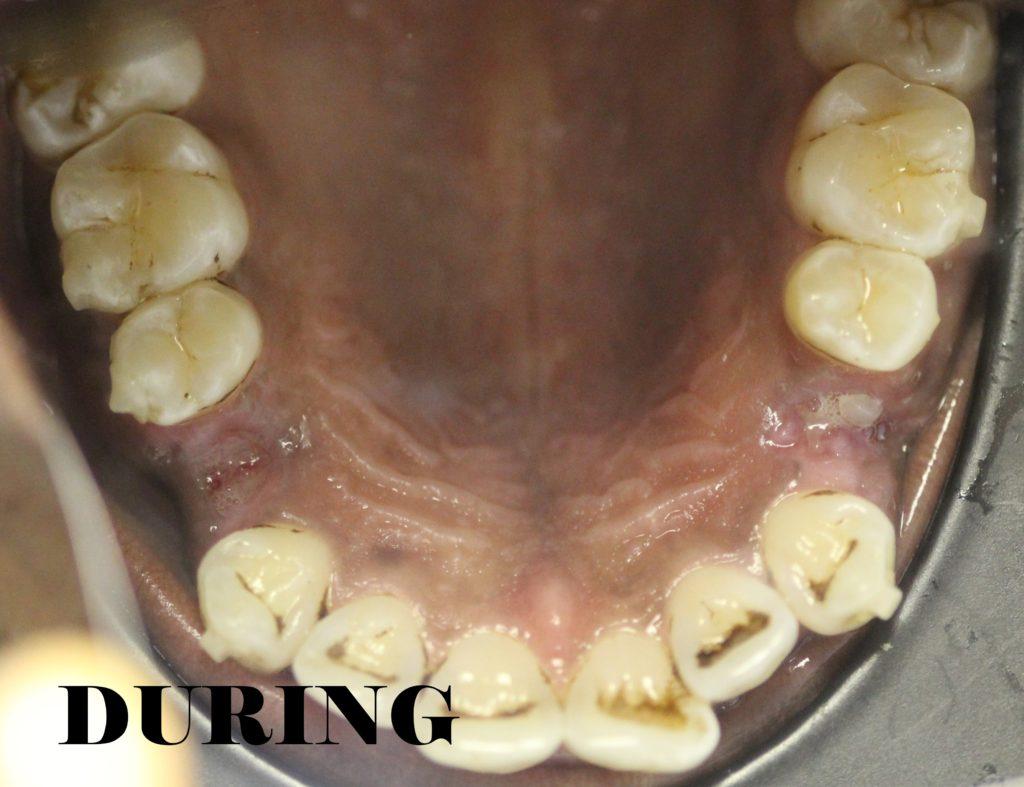 flared teeth during