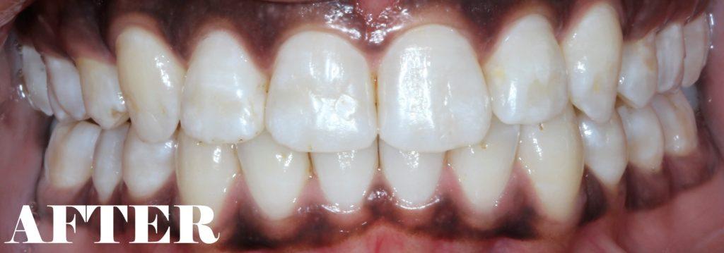 flared teeth after