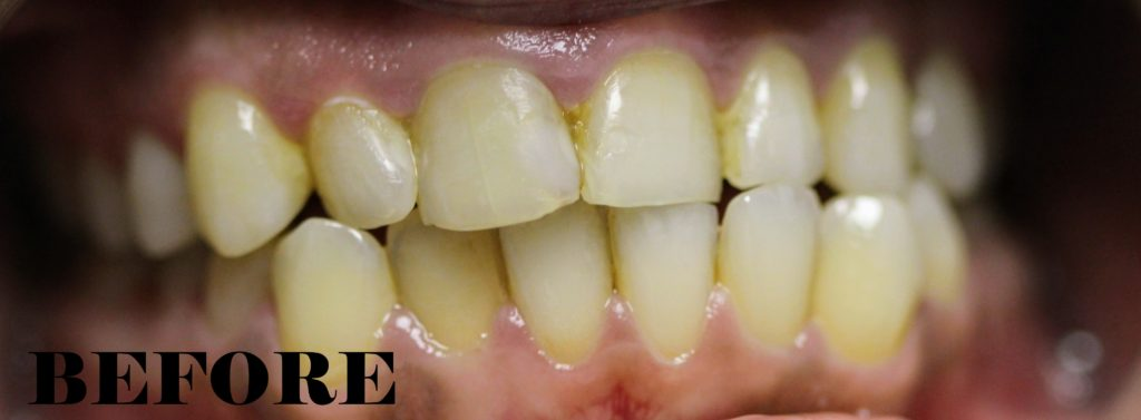 bonding and composite fillings before