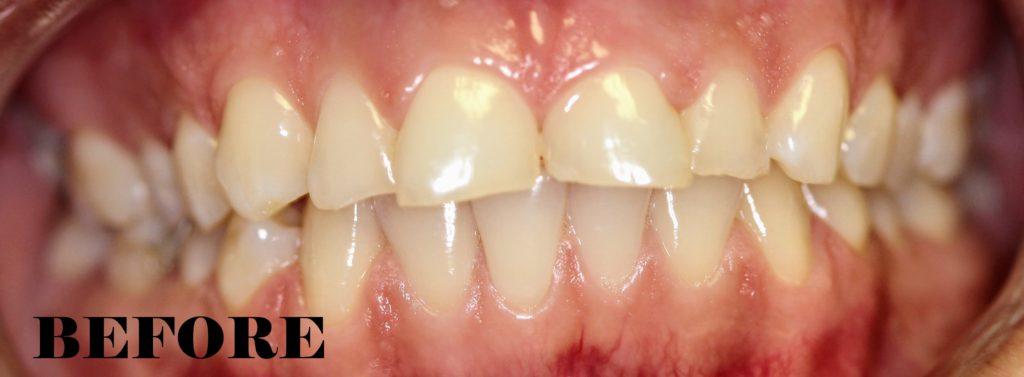 worn enamel repaired mynt dental winnipeg