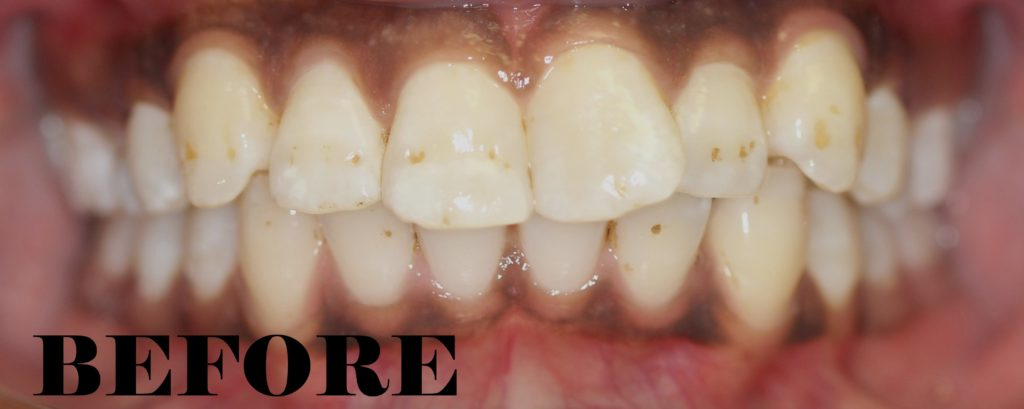 Flared Teeth Before