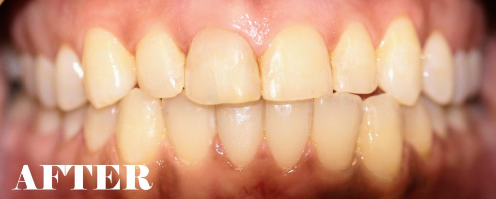 bonding and composite fillings after